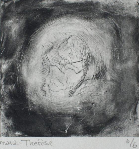 Foetus 10 weken 1 - 15 X 21